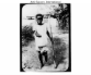 Belgian Congo atrocities – boy with severed hand and foot