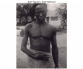 Belgian Congo atrocities - man shot in wrist and hand
